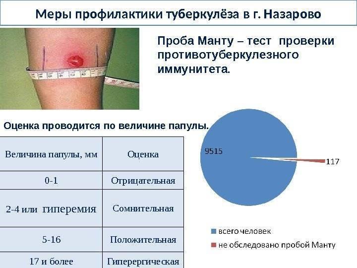 Анализ крови на туберкулез вместо манту и другие альтернативы проверки реакции для ребенка   прививки   vpolozhenii.com