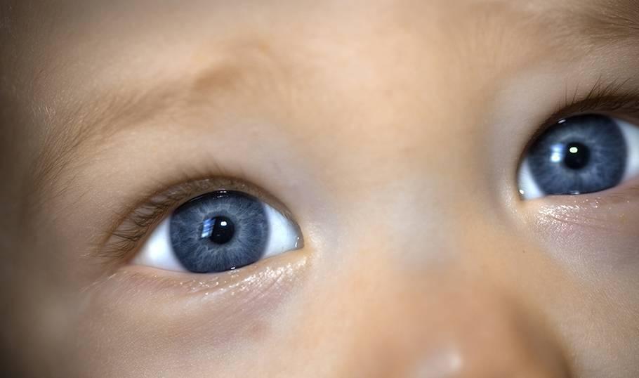 Отёки, мешки и синяки под глазами ребёнка. что делать родителям? | здоровье детей