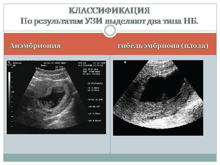 Признаки замершей беременности на ранних сроках,  диагностика и действия