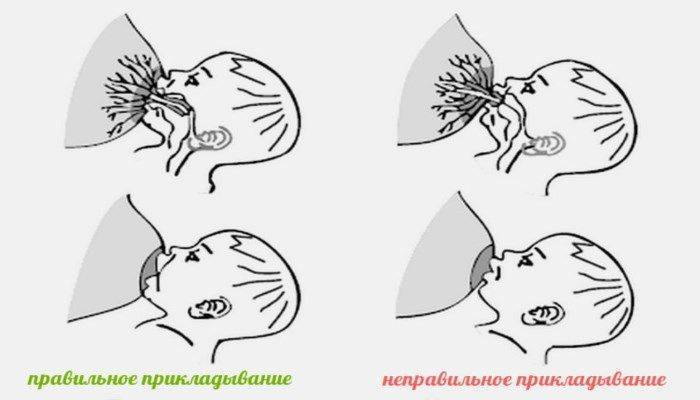 Как расцедить грудь при кормлении: как правильно делать массаж при лактации и разминать молочные железы