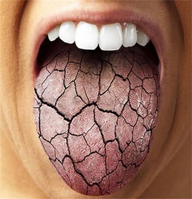 У подростка сохнет во рту | здоровье зубов