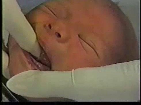 Уздечка у новорожденных: признаки, лечение, методы определения и первые симптомы проблемы (85 фото)