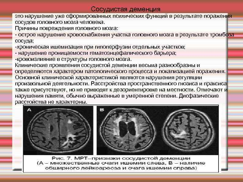 Энцефалопатия у детей: что значит этот диагноз?