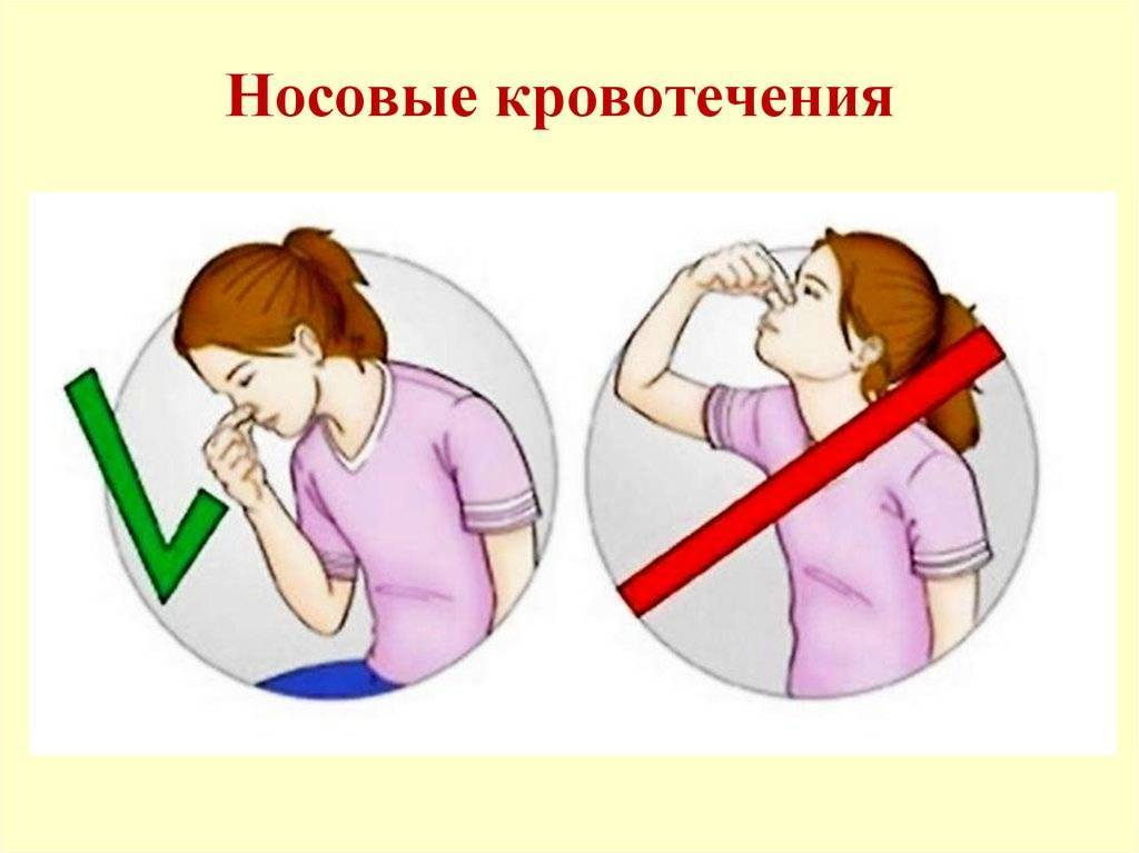Как остановить кровь из носа у взрослых и детей