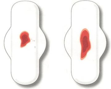 Скудные месячные - причины: почему очень плохо и слабо идет менструация, а выделения без крови? | месячные | vpolozhenii.com