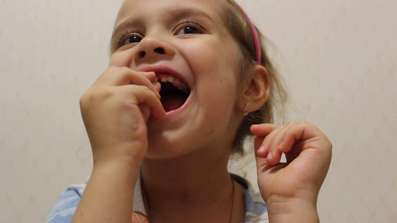 Как быстро вырвать молочный зуб