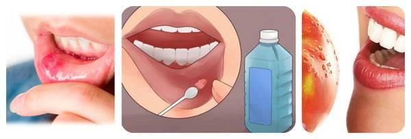 Язвочки у детей во рту - фото, причины и лечение, что делать?