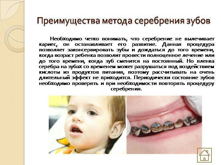 Серебрение молочных зубов, достоинства и недостатки процедуры