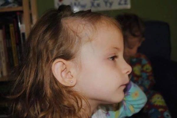 Почему у ребенка очень плохо растут волосы, выпадают: причины и коррекция проблемы у грудничков и детей постарше