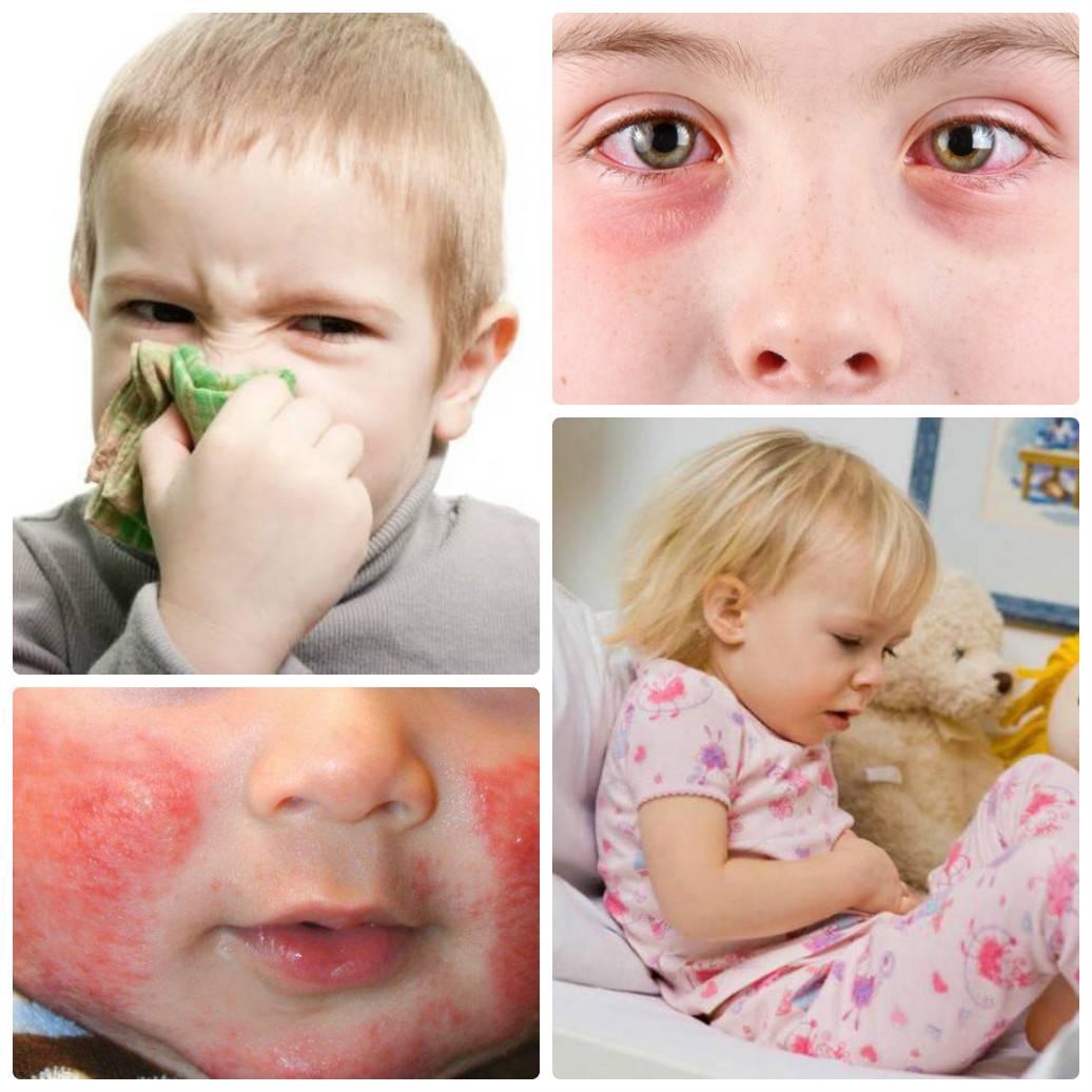 Аллергия на собаку у ребенка симптомы
