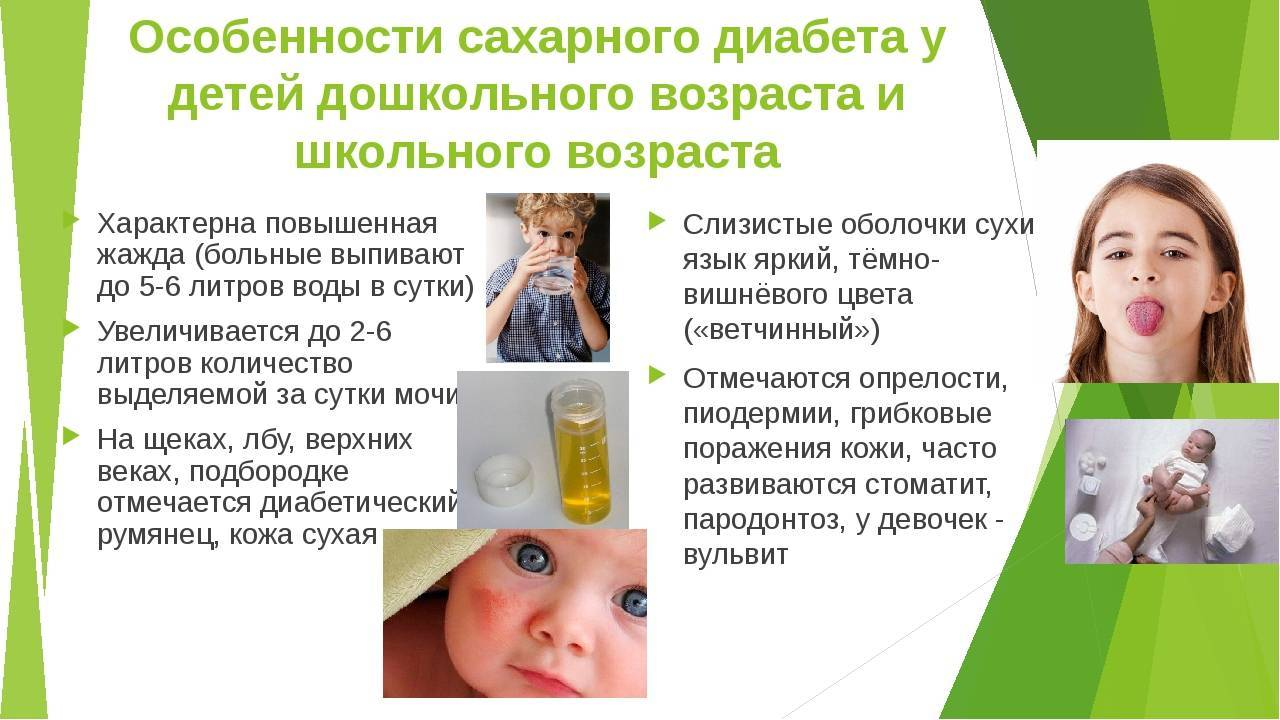 Симптомы и признаки сахарного диабета у детей (фото)