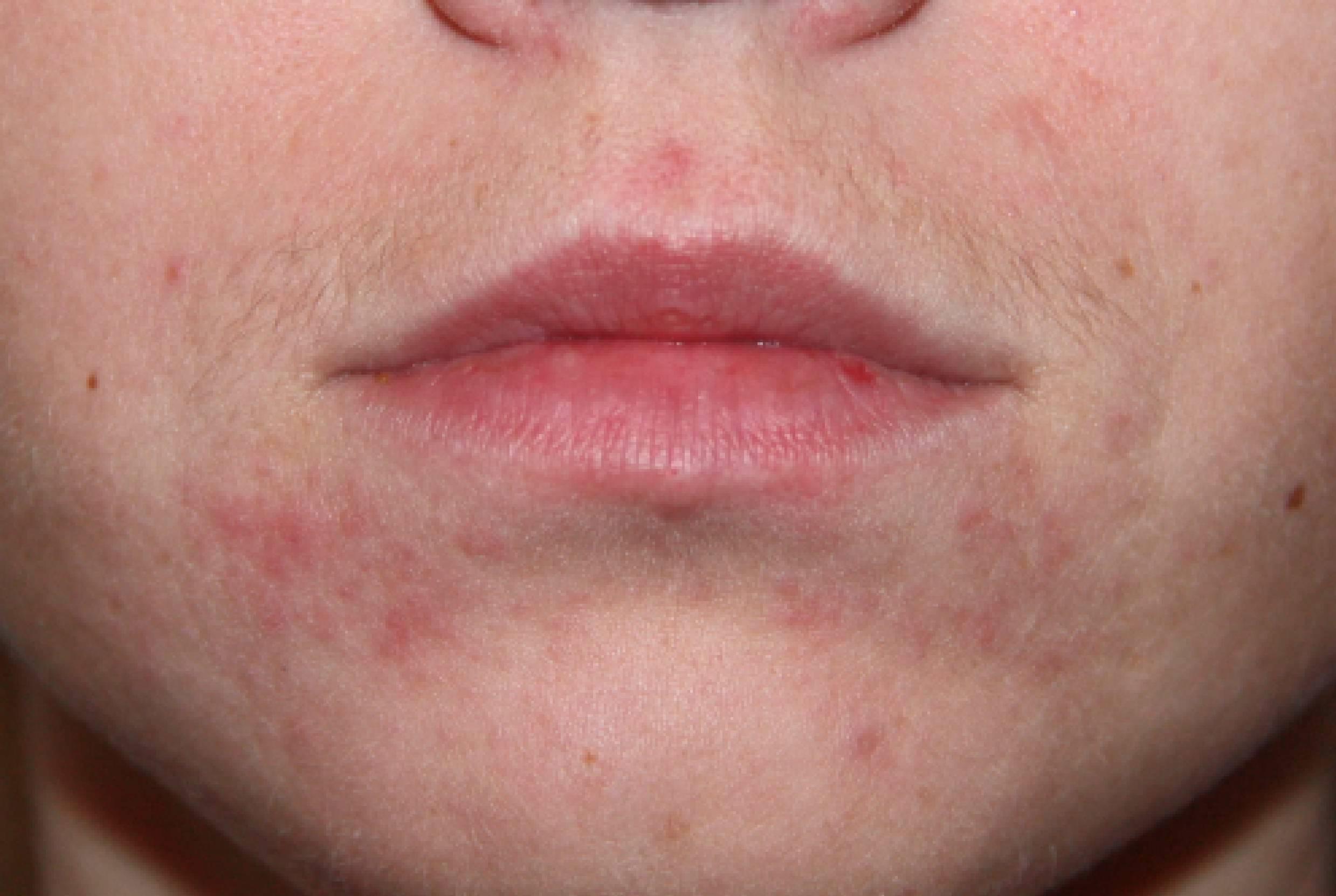 Покраснение и сыпь вокруг рта у ребенка - причины, как лечить аллергию