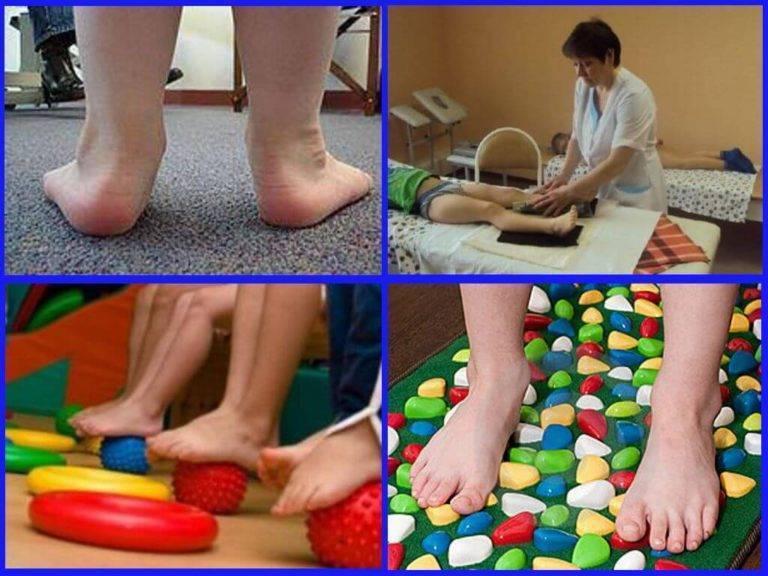 Деформация суставов у детей