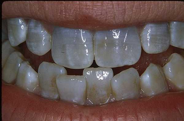 Причины черных пятен на зубах у детей лечение
