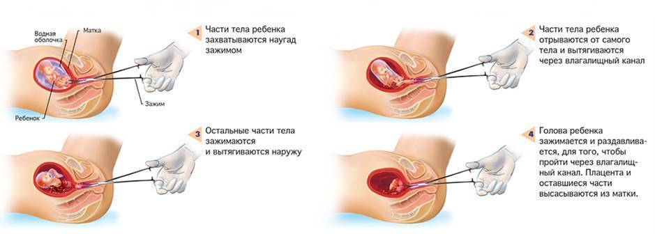 Медикаментозный аборт: сроки, суть, последствия
