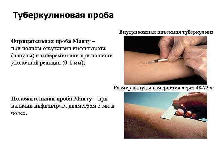 Проба манту: оценка результата у детей, нормы в таблице, подготовка к прививке, расшифровка реакции
