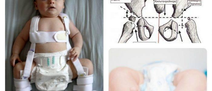 Тазобедренная дисплазия у новорожденных: почему развивается и как бороться