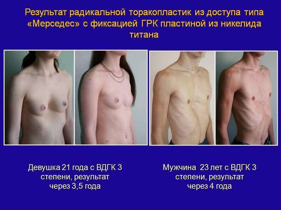 Деформация грудной клетки у ребенка килевидная