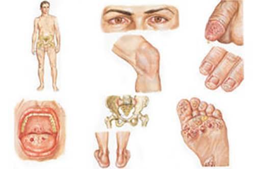 Хламидиоз у детей: пути заражения, симптомы и эффективное лечение
