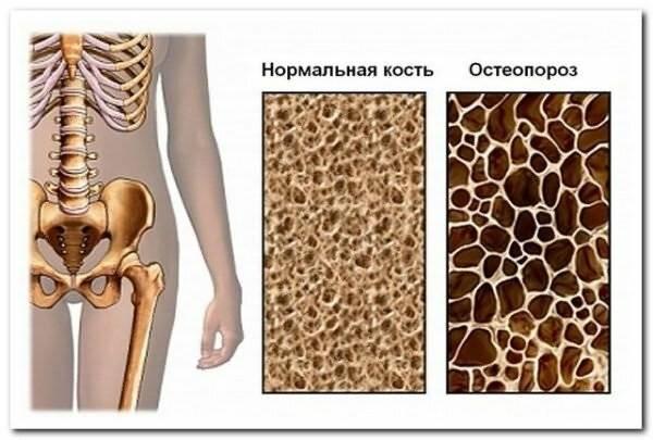 Остеопетроз, или мраморная болезнь: 4 формы опасного заболевания и 3 принципа его лечения
