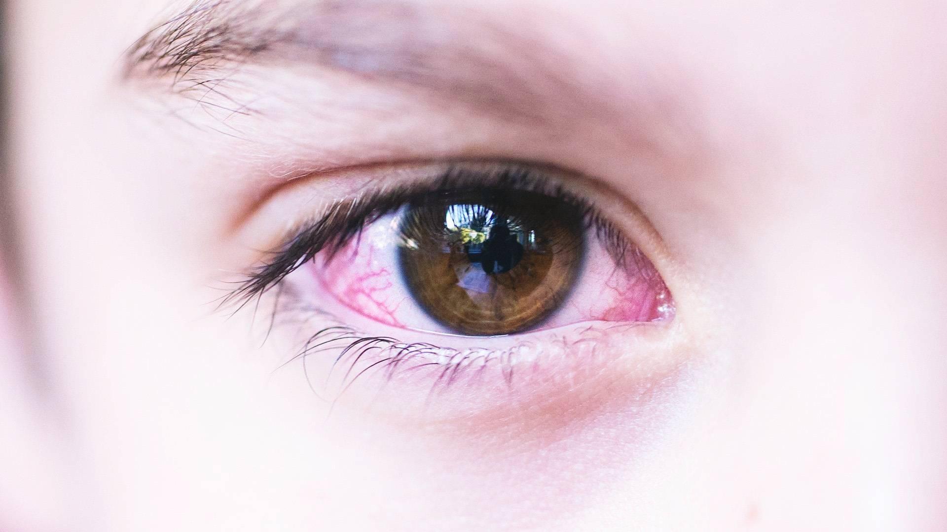 Покраснение глаза у ребенка 3 года лечение