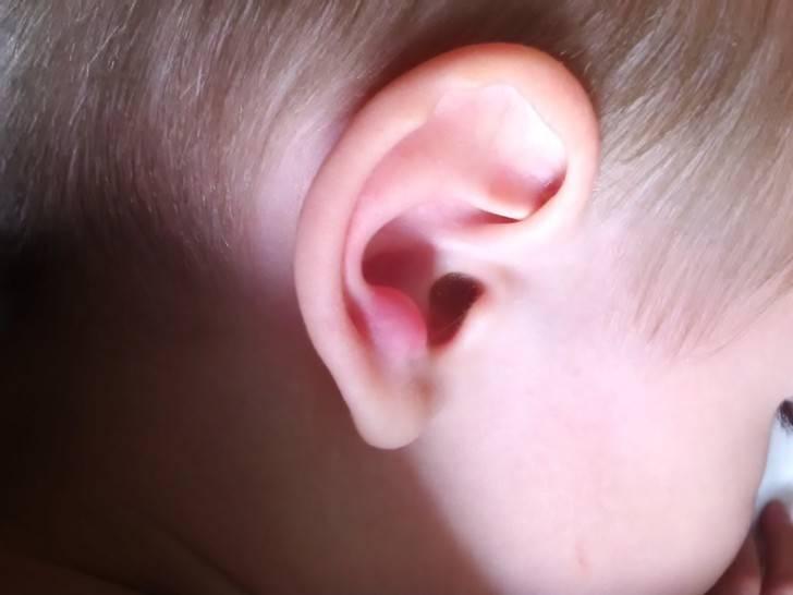 Засохшая кровь в ухе у ребенка. причины кровотечения из уха у ребёнка - все о зубах