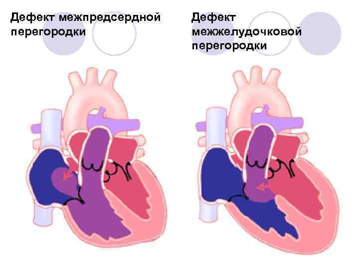 Порок сердца у новорожденных межжелудочковой перегородки