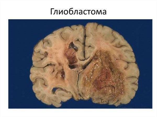Опухоль головного мозга у детей: симптомы, признаки