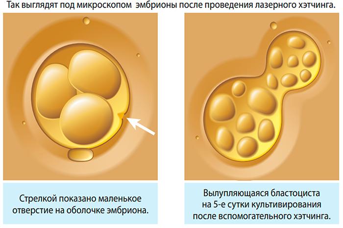 Хетчинг эмбрионов: что это такое, для чего проводится, возможны ли осложнения?