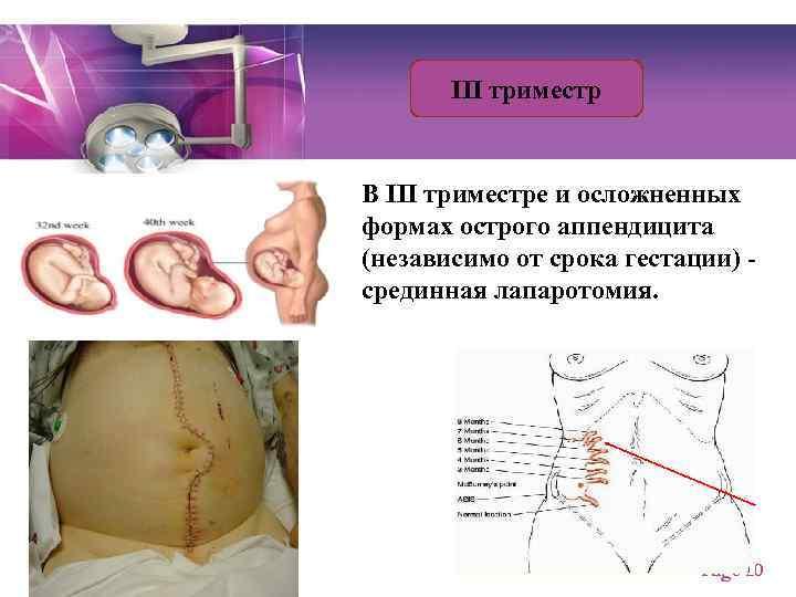Аппендицит при беременности: симптомы, удаление, признаки, последствия, вырезают ли аппендикс у беременных