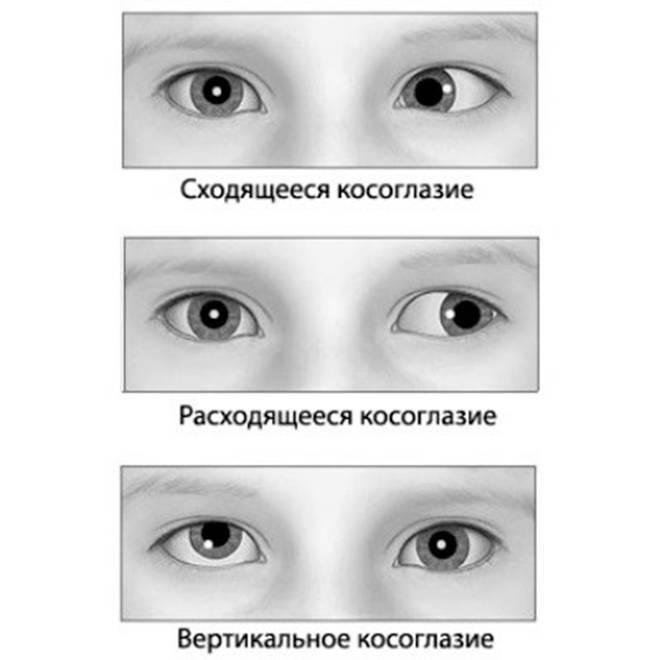 Косоглазие у детей до года и после - как лечить страбизм у детей