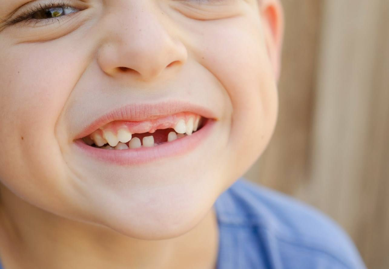 Кривые зубы у детей: причины, лечение и профилактика