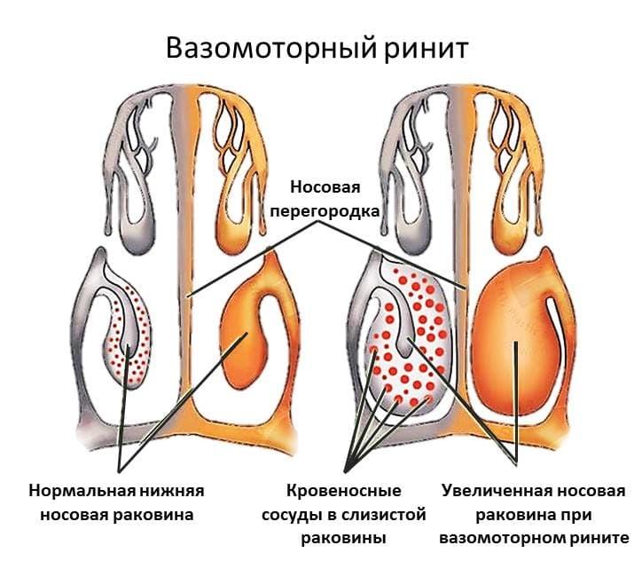 Комаровский: симптомы и лечение аллергического вазомоторного ринита у детей