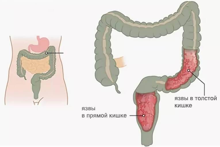 Как проявляется долихосигма кишечника у ребенка?