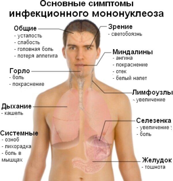 Инфекционный мононуклеоз у детей признаки и лечение