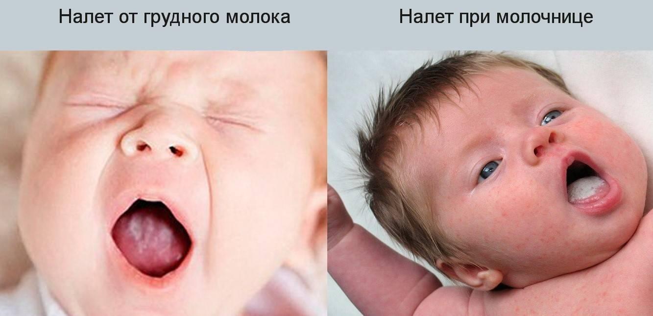 Молочница у новорожденных во рту - причины и способы лечения