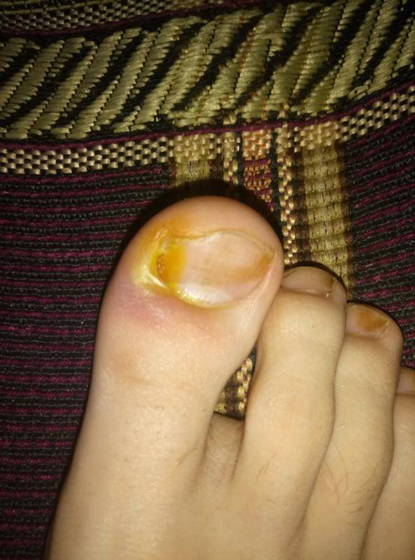 Нарыв, воспаление на пальце возле ногтя, на ноге или на руке | разумный потребитель медицинских услуг