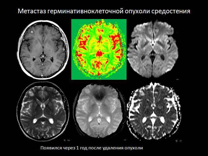 Диффузная глиома головного мозга - симптомы и лечение