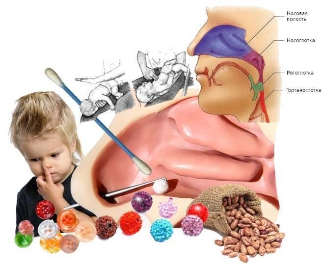 Ребенок засунул в нос бусинку: что делать с инородным телом, как его вытащить?   симптомы   vpolozhenii.com