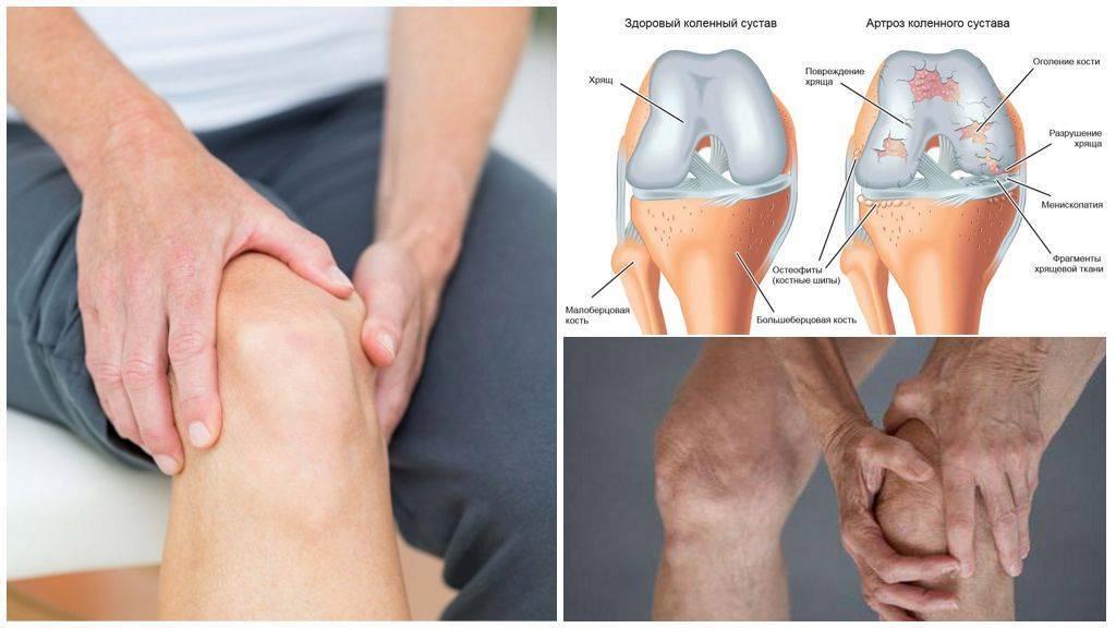 К какому врачу нужно обращаться, если заболело колено