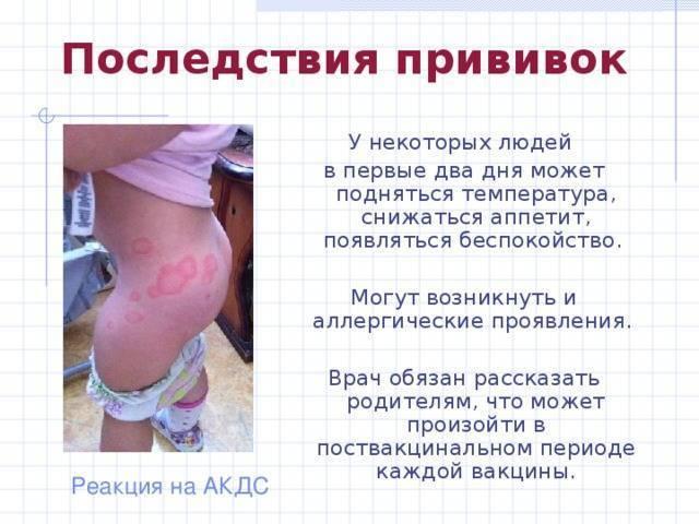 Насморк после прививки: ? все о беременности и детях