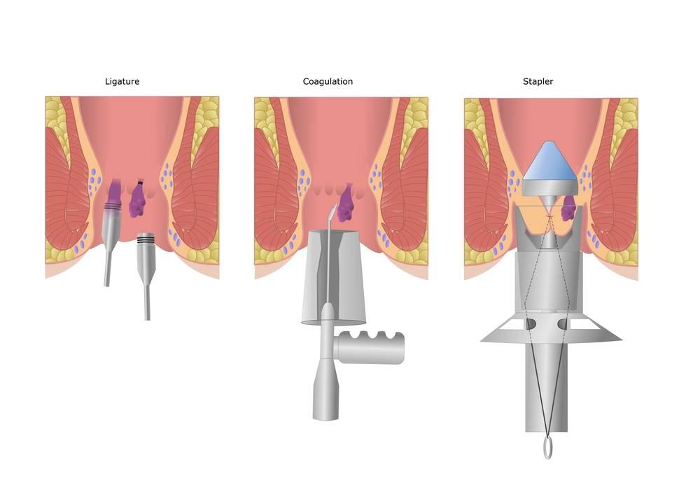 Е. комаровский: синехии у девочек – как лечить сращение половых губ у лечение