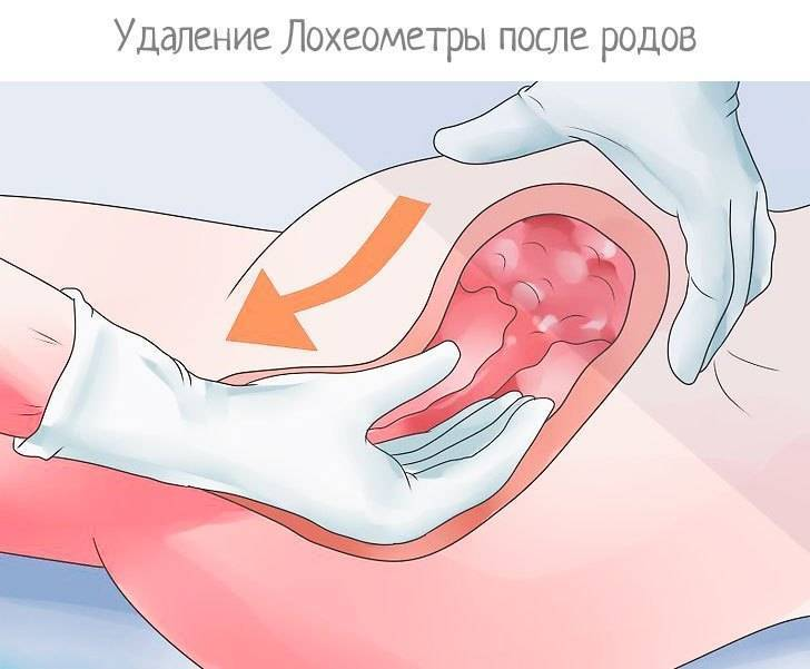 Выделения после выскабливания полости матки: показатель качества восстановления женского организма