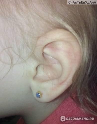 Что делать если гноится ухо после прокола: чем обрабатывать и как ухаживать