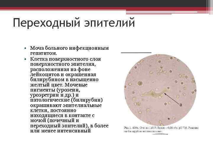 Плоский эпителий в моче у ребенка: норма у грудничков до года и детей постарше | диагностика | vpolozhenii.com