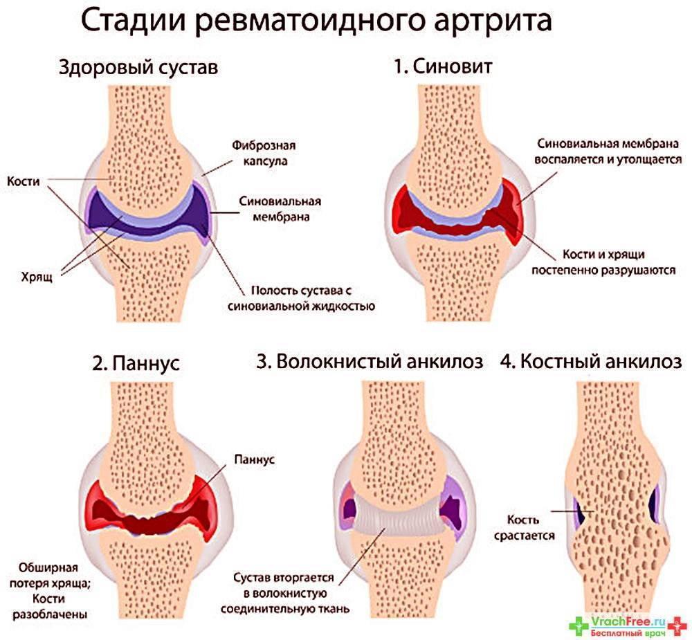 Ювенильный ревматоидный, реактивный артрит у детей: симптомы и лечение