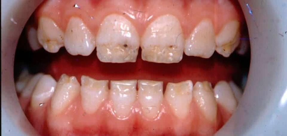 Пигментация зубов - способы решения проблемы - много зубов