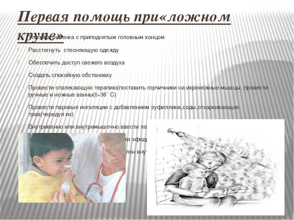 Ложный круп у детей: симптомы болезни и ее лечение в домашних условиях