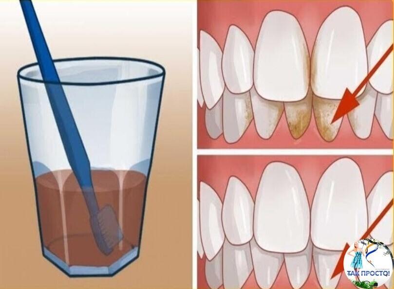 Черный налет на зубах у детей: причины, фото, способы убрать пятна