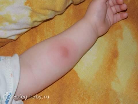 После прививки манту поднялась температура у ребенка 1-2-3 года